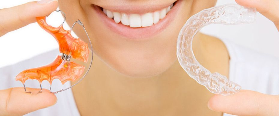 DO I NEED TO WEAR MY RETAINER EVERY NIGHT? - Eastgate ...